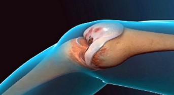 Лекарите са в шок: Тази рецепта напълно възстановява функционирането на коленете и ставите!