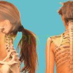 Челюстите и гръбнака са свързани. Боли ви гърба - лекувайте зъбите си!